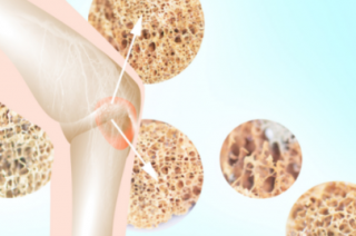 PODCAST: tipos e sintomas do tumor ósseo